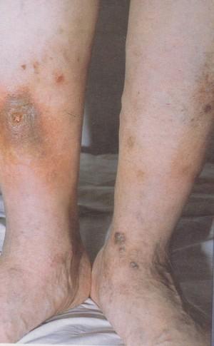 eczema legs
