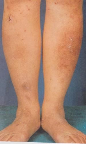 eczema legs2